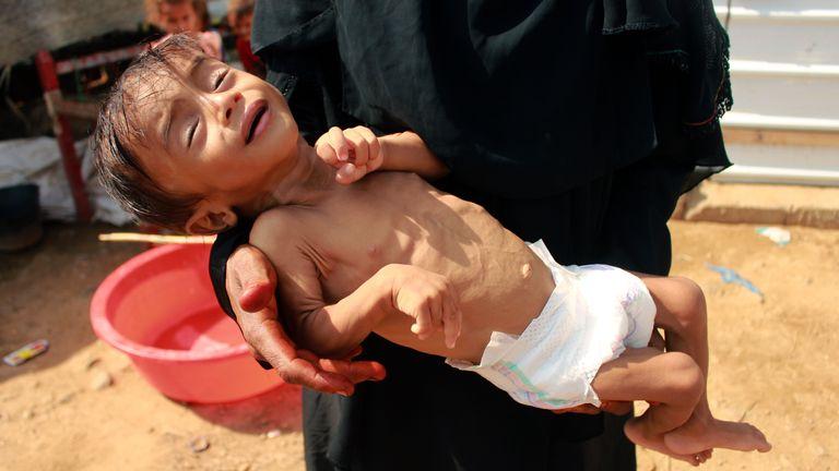 skynews yemen famine starving 5099641.jpg